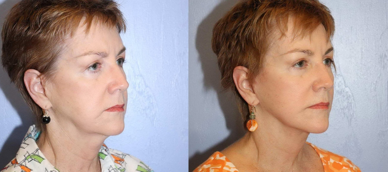 Face Lift with Upper and Lower Eyelids Case 4