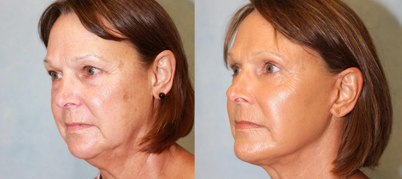 Rhytidectomy and Upper Blepharoplasty Case 5