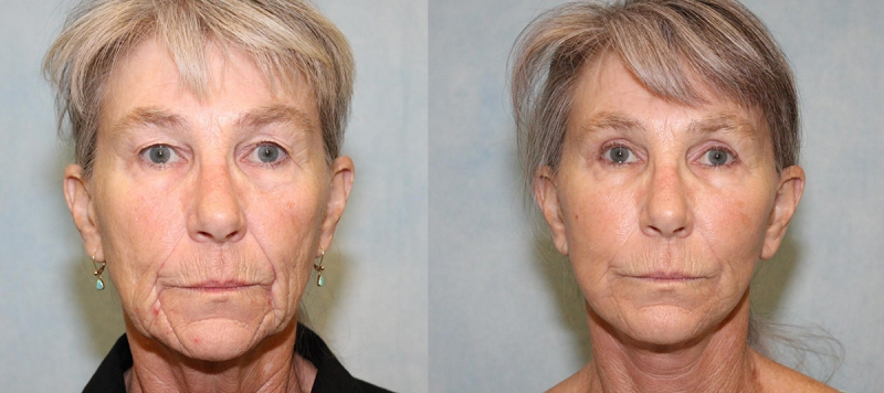 Face and Upper Eyelids Case 6