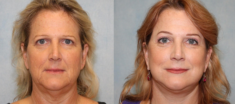 Face Lift, Upper Eyelids and Brow Case 7