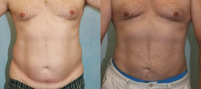 Liposuction Male Patient Case 1