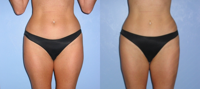 Liposuction 20324 Case 3