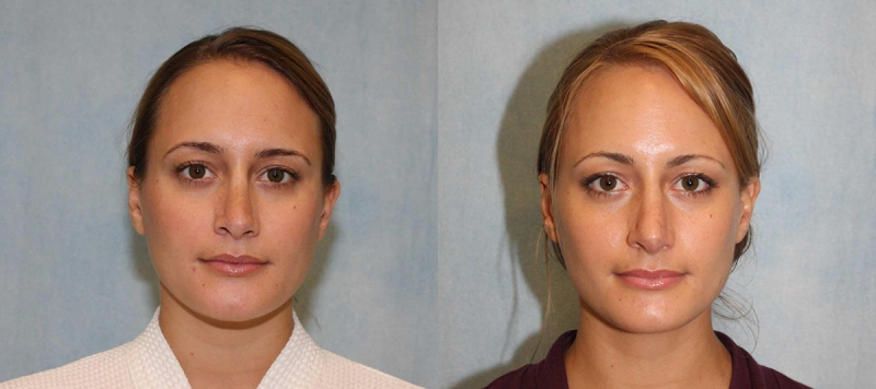 Rhinoplasty Case 4