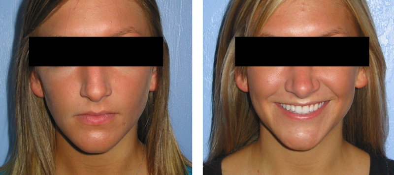 Rhinoplasty Case 6