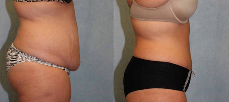 Abdominoplasty Tummy Tuck In Gainesville Fl