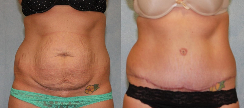 Abdominoplasty with Diastatis Recti Case 2