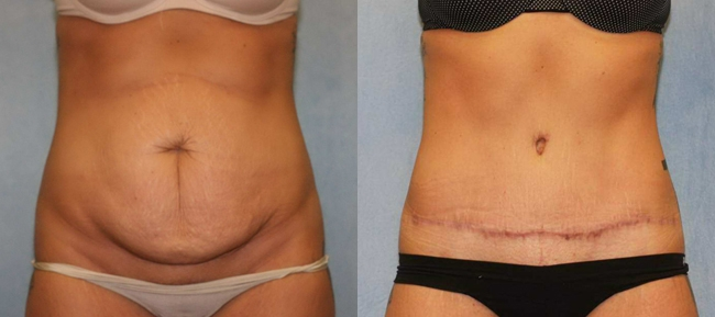 Abdominoplasty with Diastatis Recti Case 4