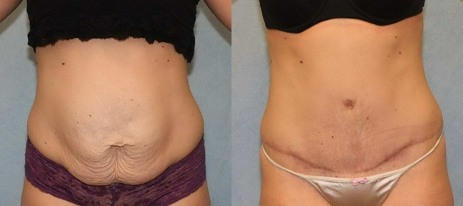 Abdominoplasty with Diastatis Recti Case 5