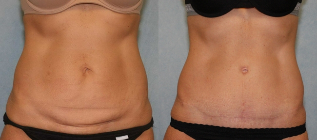 Abdominoplasty with Diastatis Recti Case 6