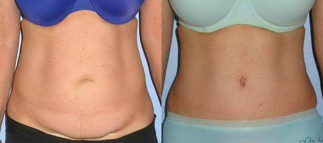 Abdominoplasty with Diastasis repair Case 8
