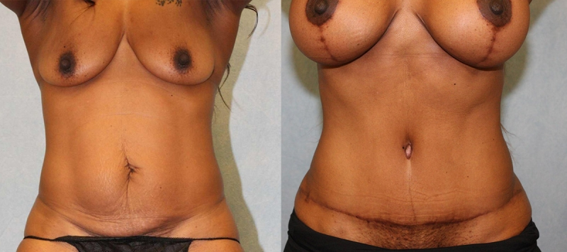 Abdominoplasty with Diastatis Repair Case 9