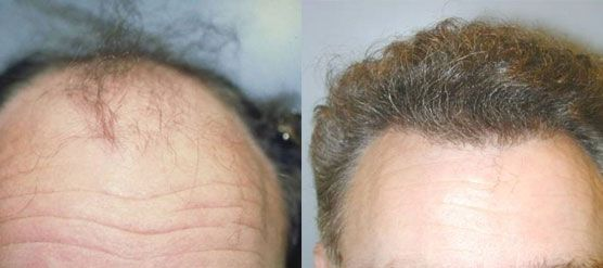 Before and After NeoGraft Hair Restoration