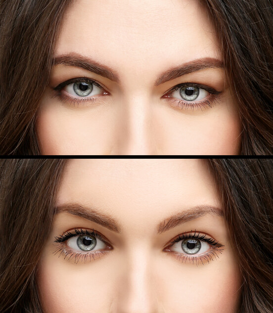 Eyelid Cosmetic Surgery Before & After In Gainesville, FL