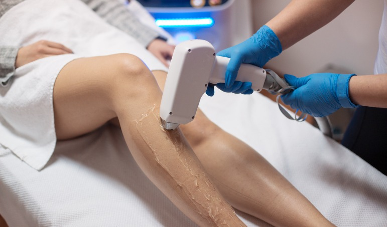 Get a Leg Up on your Laser Hair Removal
